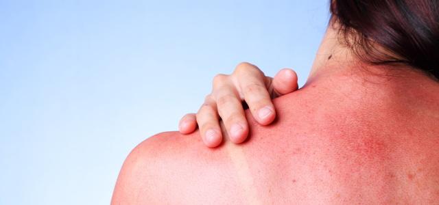 Sonnenbrand mit Hausmitteln behandeln