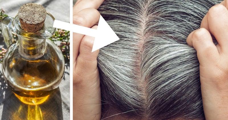 Schuppen auf der Kopfhaut bekämpfen: Diese Hausmittel helfen ...