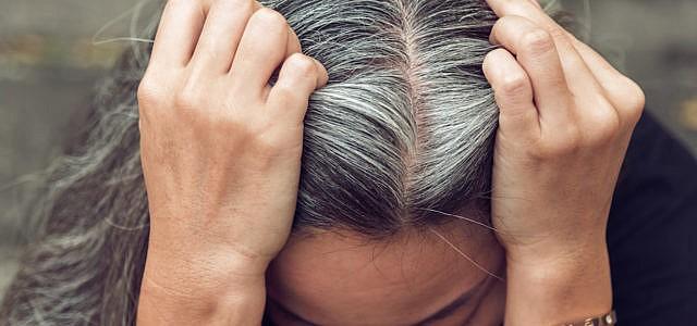 Schuppen Auf Der Kopfhaut Bekämpfen Diese Hausmittel Helfen Utopiade