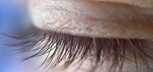 Zuckende Augenlider können auf einen Magnesiummangel hinweisen.