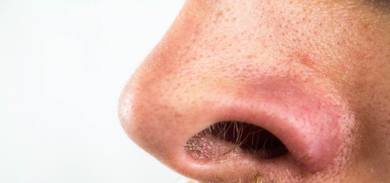 Schwarze Punkte Nase