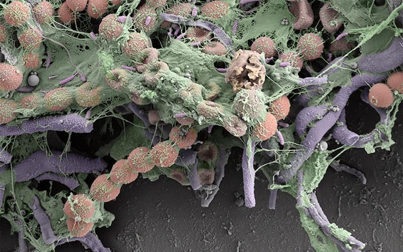 Bade-Enten Bakterien Pilze Keime