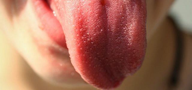 Zungenbelag ist meist harmlos.