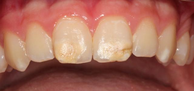 Kreidezähne Zähne