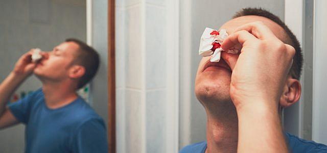 Nasenbluten stoppen Ursachen