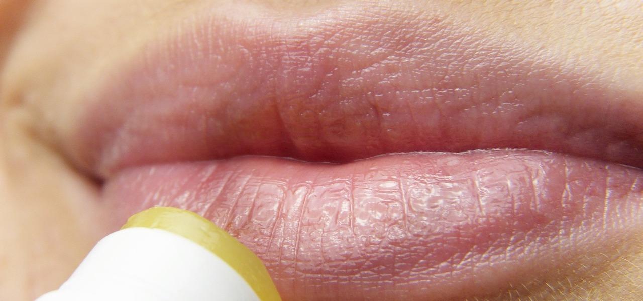Herpes wovon kommt Herpes: Warum