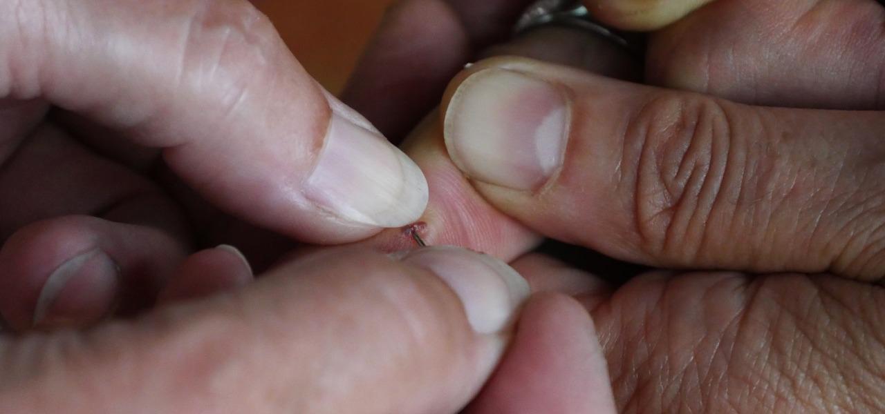 Unterm fingernagel eiter Hausmittel gegen