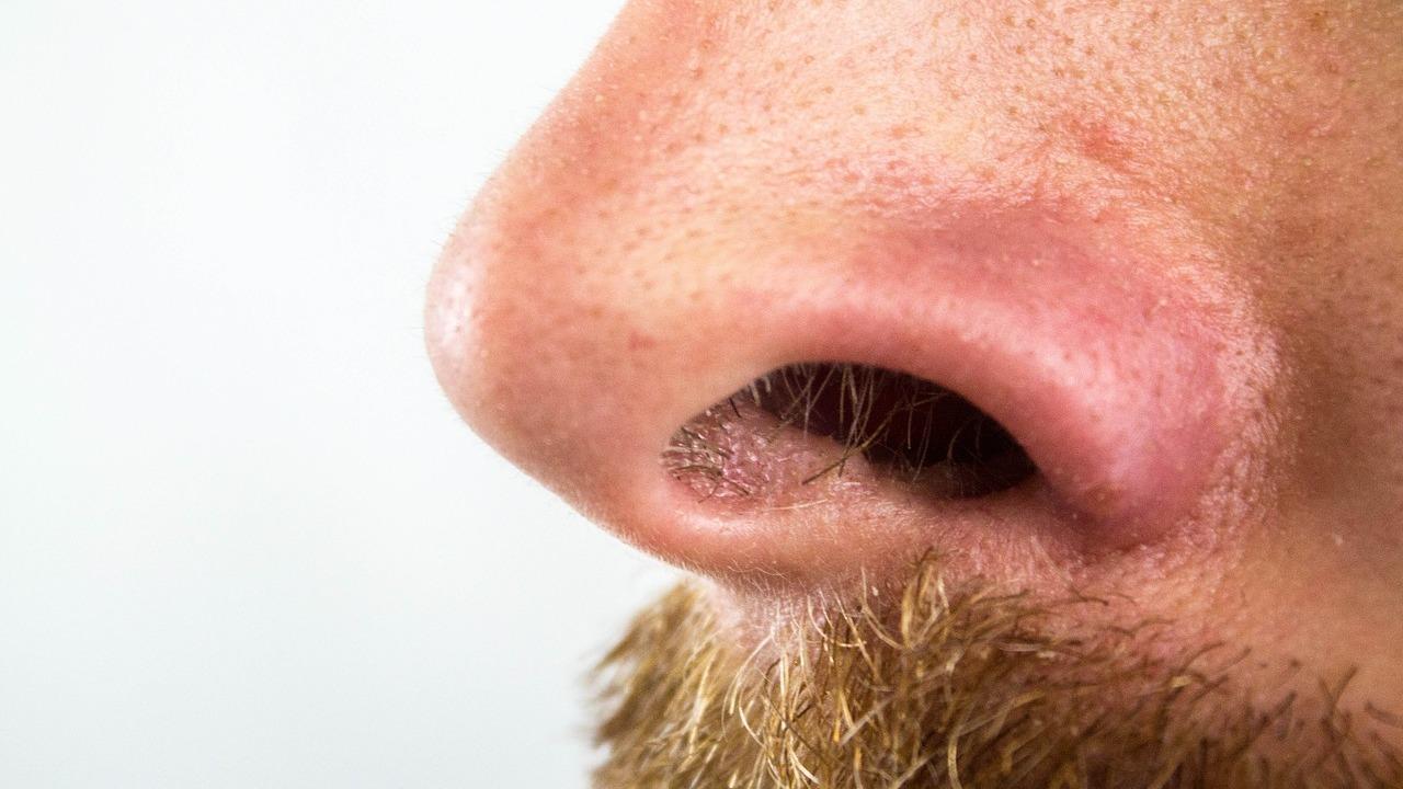 Wie Entferne Ich Mitesser Auf Der Nase